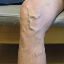 View of patient leg that has varicose veins.